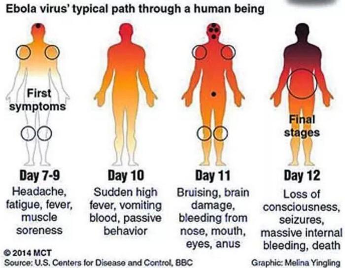 20140805_ebola2